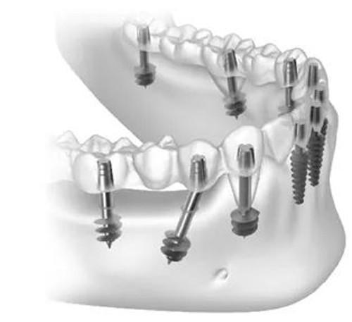 השתלות שיניים בזאליות אצל ד''ר אנקר ביהוד