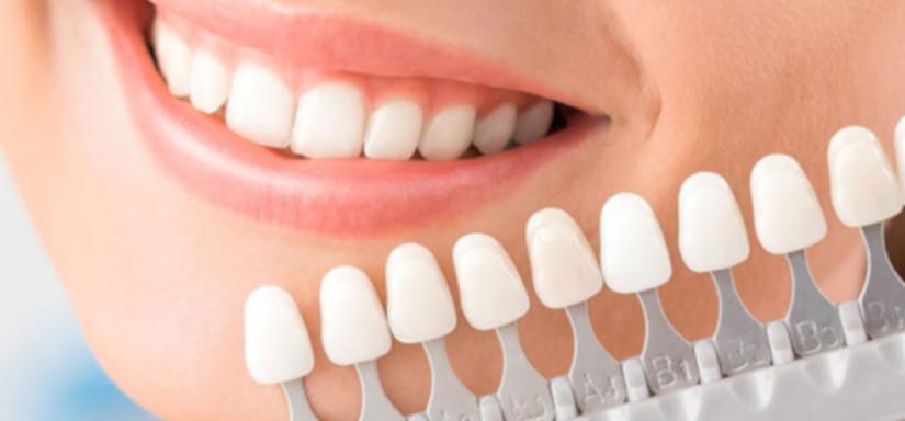 ציפוי שיניים דקים במיוחד1אנקר