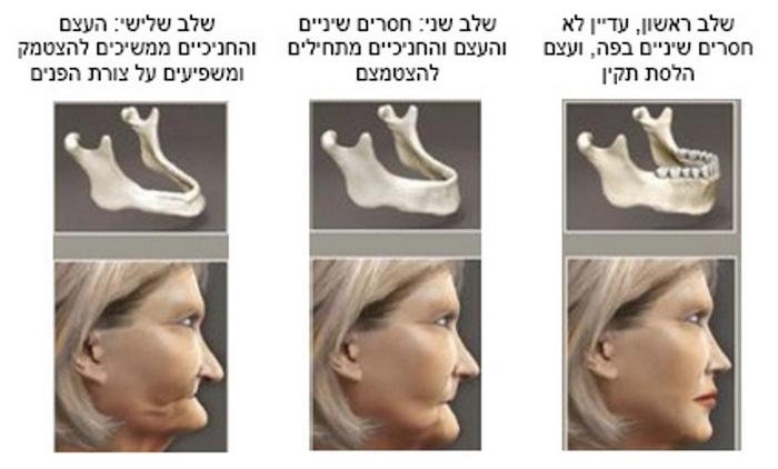 הזדקנות הפנים שלושה שלבים